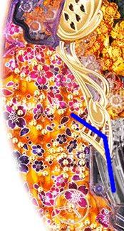金の花満開